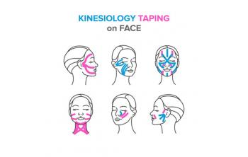 Miotaping, the new facial rejuvenation treatment