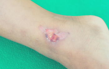 What are pressure ulcers?