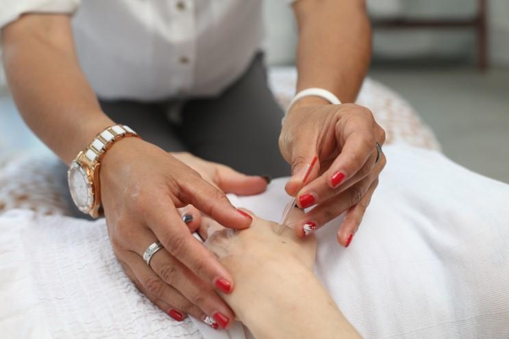 beneficios-acupuntura-mipmed-stress